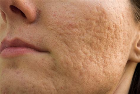 acne scars on face treatment prescription acne scar cream prescription scar cream