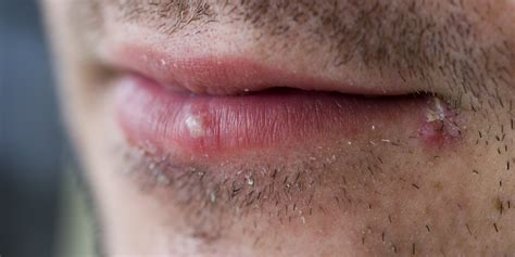 herpes bocca interno herpes virus could successfully treat skin cancer study