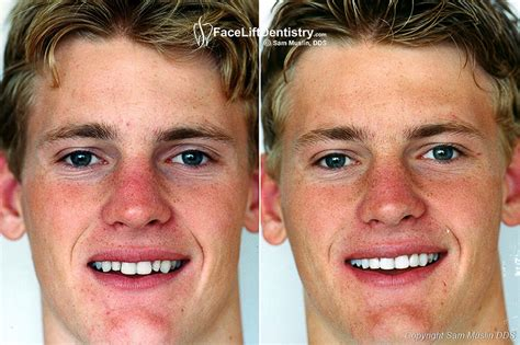 Next Facelift For Your Teeth 2 by Porcelain Veneers For Small Teeth