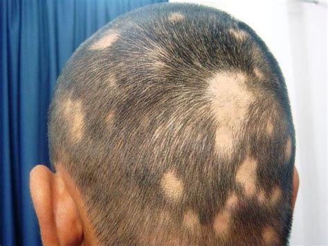 bald spot on bald spots on pictures driverlayer search engine