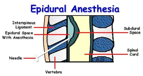 spinal versus epidural anaesthesia for caesarean section epidural anesthesia anesthesia pinterest