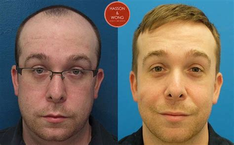 hair transplant before and after some of our favourite transformations hasson wong