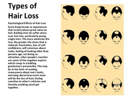 types of hairlines how to stop hair loss