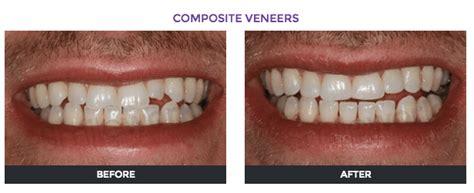 Veneer Komposit veneers cost in 2018 veneers price comparison by