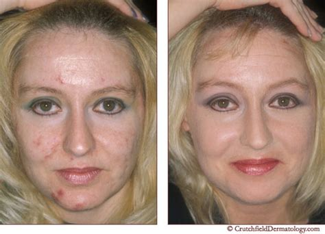 Detox After Accutane by Acne Treatment