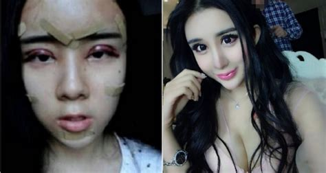 why more students are getting plastic surgery