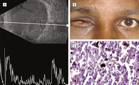 Painful Blind Eye Evisceration In Unsuspected Intraocular Tumors Jama