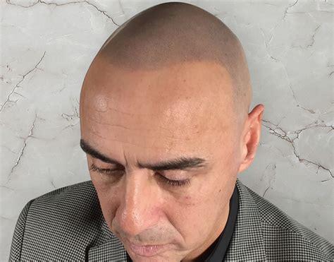 edinburgh tattoo faq hair transplant edinburgh hair transplant edinburgh