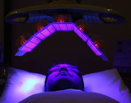 blue light treatment for sun damage blue light therapy arion skin laser