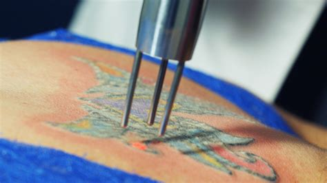 how laser tattoo removal works laser removal patient guide how removal works