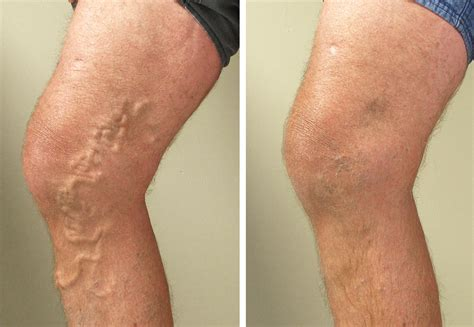 spider veins on the legs treatments varicose vein removal treatment orange county ca