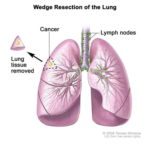 is there a cure for lung cancer non small cell lung cancer treatment pdq 174 patient