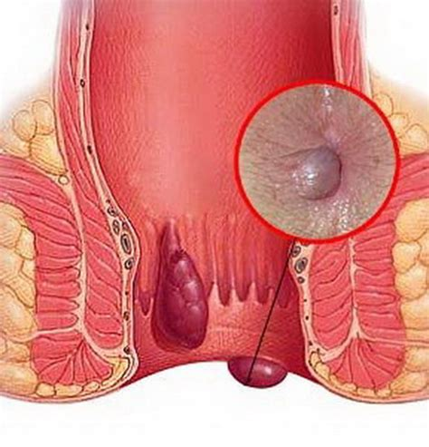 hemorrhoid images hemorrhoids images pictures and photo health care 171 qsota 187