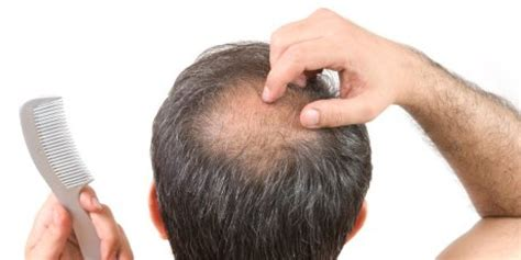 prevent and prolong balding mens health hair loss cures top foods for hair growth huffpost uk