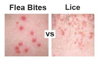 do bed bugs bite your scalp flea bites vs lice how do you tell them apart