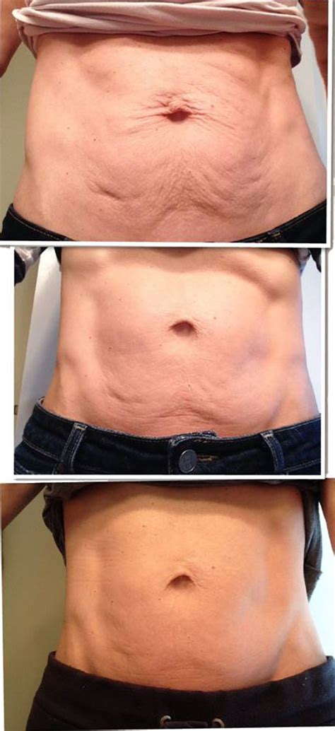 fascia blasting for the tummy nerium firm reviews
