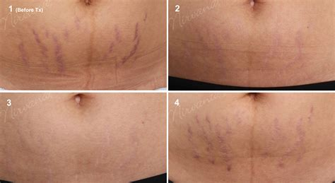 Stretch Marks by Varicose Veins Pictures Posters News And On