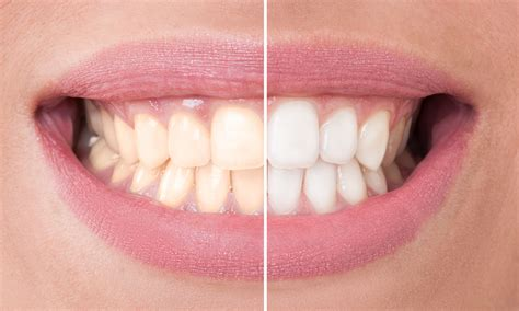 teeth whitening kits    home  work