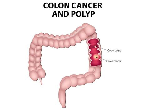 color cancer 11 powerful home remedies for colon cancer organic facts