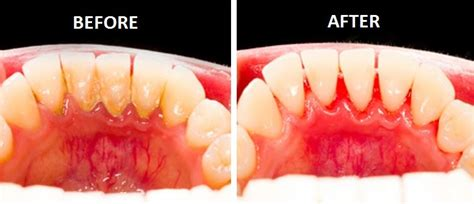 tartar removal easiest way to remove tartar clean plaque and destroy the bacteria in the with