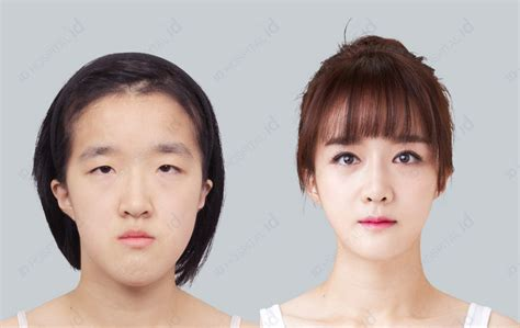 Ill Plastic Surgery Hollyscoop by Plastic Surgery Hospital In South Korea Id Hospital