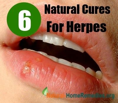 herpes treatment at home 6 effective cures for herpes home remedies