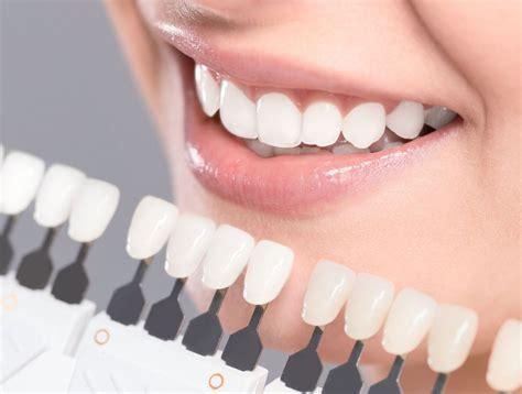 teeth whitening dubai teeth cleaning  teeth