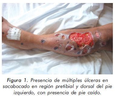 a pie de co en inglés cutaneous ulcers and thrombotic neuropathy as first