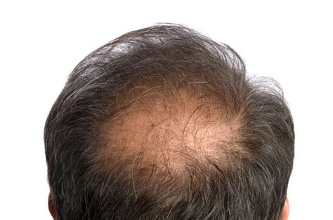 a man balding at the crownwhat is the best hair style for related keywords suggestions for hair loss crown