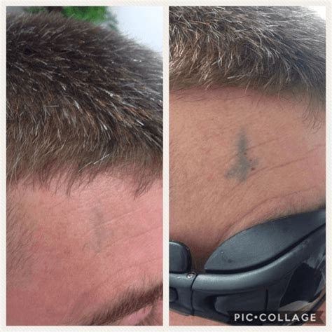 tattoo removal wiltshire gallery thinkb4youink