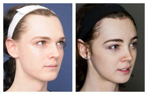 mtf ffs facial feminization surgery before and after erika before and after facial feminization surgery 2pass