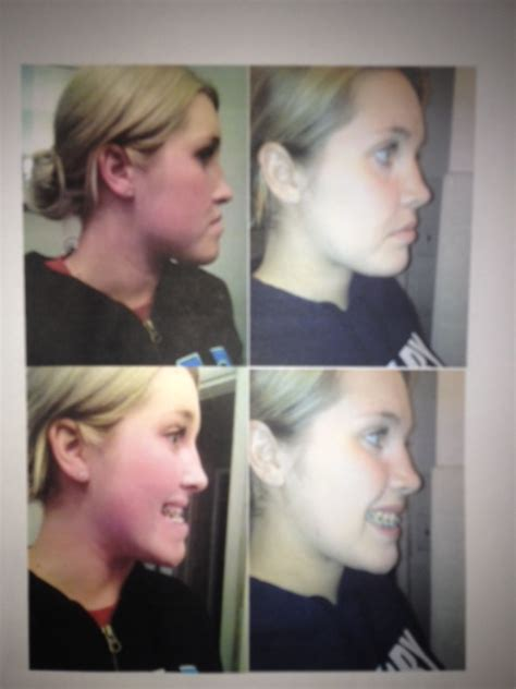 jaw surgery recovery timeline double jaw surgery journeyofthejaws double jaw surgery this is my recovery
