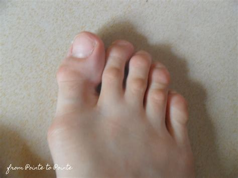 hammer toe treatment in your own home alfredia bocskor