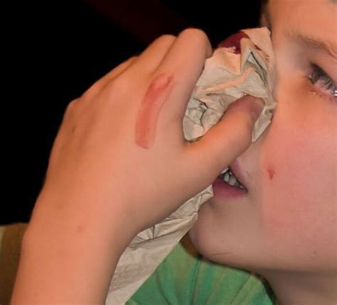 aleve side effects nose bleeds precautions and ayurvedic treatments for bleeding nose