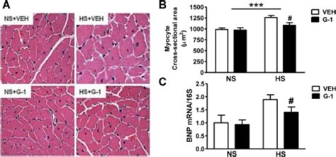Cross Sectional Area Means by Gper Activation With G1 Limits Salt Induced Myocyte Hyp