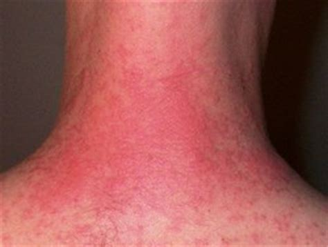 itchy rash on face and neck itchy rash on the neck causes prevention and treatment
