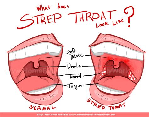 what is strep throat grace er 24 hr urgent care and