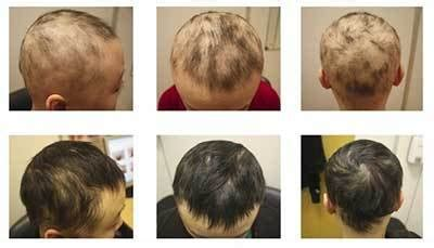 pattern of hair loss in lupus children s hair loss 10 causes you might not be aware of