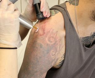 tattoo removal reading removal at pulse light clinic stylenest