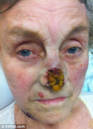 scab on s nose grandmother is forced to nose removed after medics failed to notice she had a