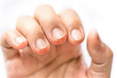 Wasserblasen An Den Fingern 5226 by Dyshidrose Dyshidrosis Gesundheit De