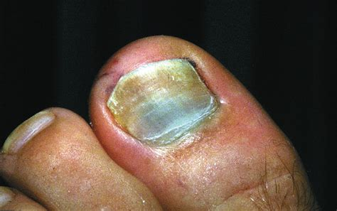 nail bed damage how to address nail bed injuries podiatry today
