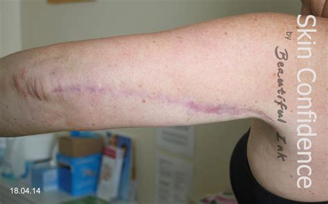 arm lift surgery brachioplasty scars reduction