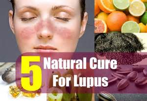 home remedies for lupus 5 cure for lupus how to treat lupus naturally