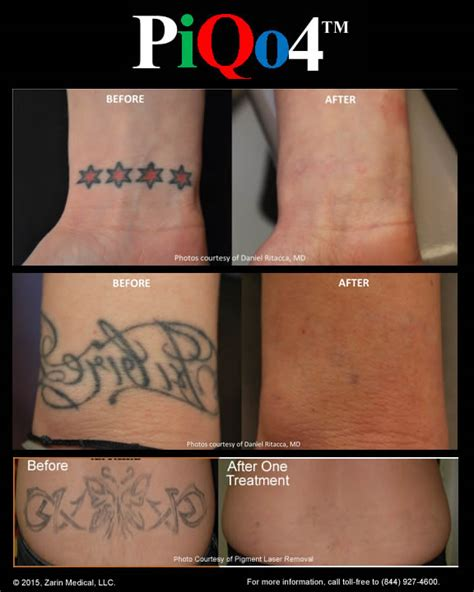 pain of tattoo removal removal with less 40 fewer treatments and