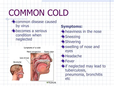 common diseases 7 common diseases in children