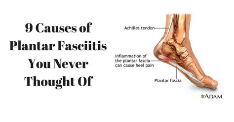 Planters Faceitis by 9 Causes Of Plantar Fasciitis You Never Thought Of