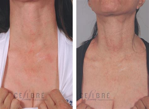 poikiloderma laser treatment before after pictures 1