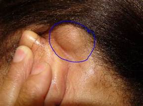 do you a lump on your neck back or your ear