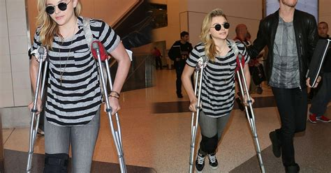 actress chloe crossword what happened to chloe moretz actress spotted with leg